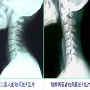 颈椎病x光片