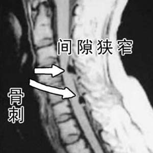 颈椎病x光片4