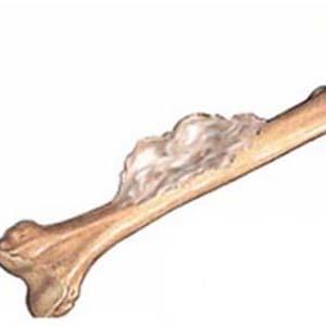骨肿瘤图片