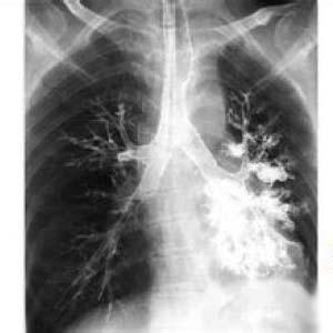 支气管扩张x线表现