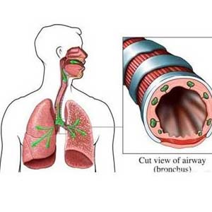 支气管扩张的症状3