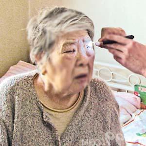 老年人白内障5