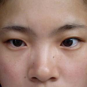 近视眼眼睛变形图片5