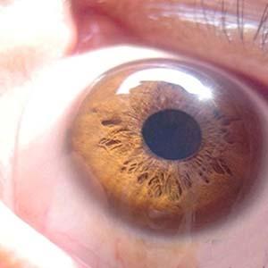青光眼眼睛图片6