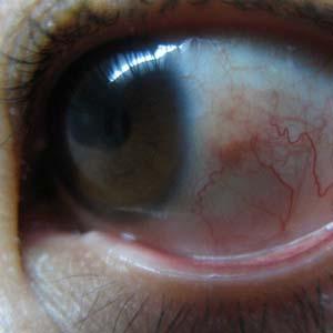 青光眼眼睛图片4
