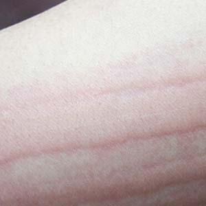 慢性荨麻疹图片8