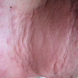 女性荨麻疹症状图片5