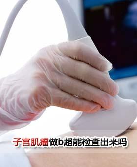 子宫肌瘤做b超能检查出来吗
