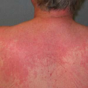 皮肌炎早期图片