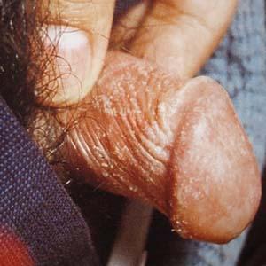 念珠菌病症状图片4