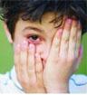 8岁男孩玩激光手电筒 右眼险些失明