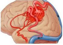 动静脉畸形真要命 揭秘你不知道的治疗方法