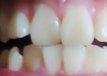 牙齿正畸需要多久因人而异