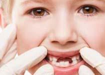进行牙齿正畸的三个重要阶段