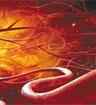 五大机构发布胆固醇科学声明