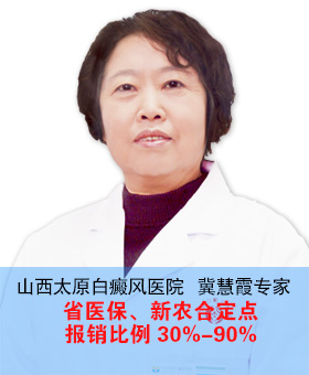 白癜风如何治疗好 山西太原白癜风医院专家冀慧霞为您解答