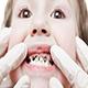 出生后从未刷牙 两岁宝宝门牙变黑